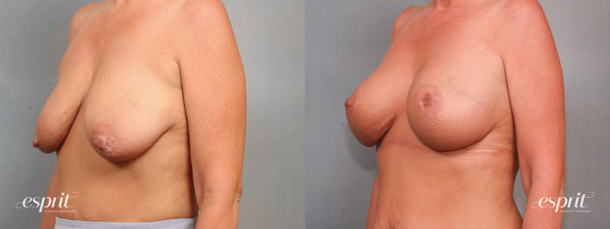 Case 1570 Before and After Left Oblique View