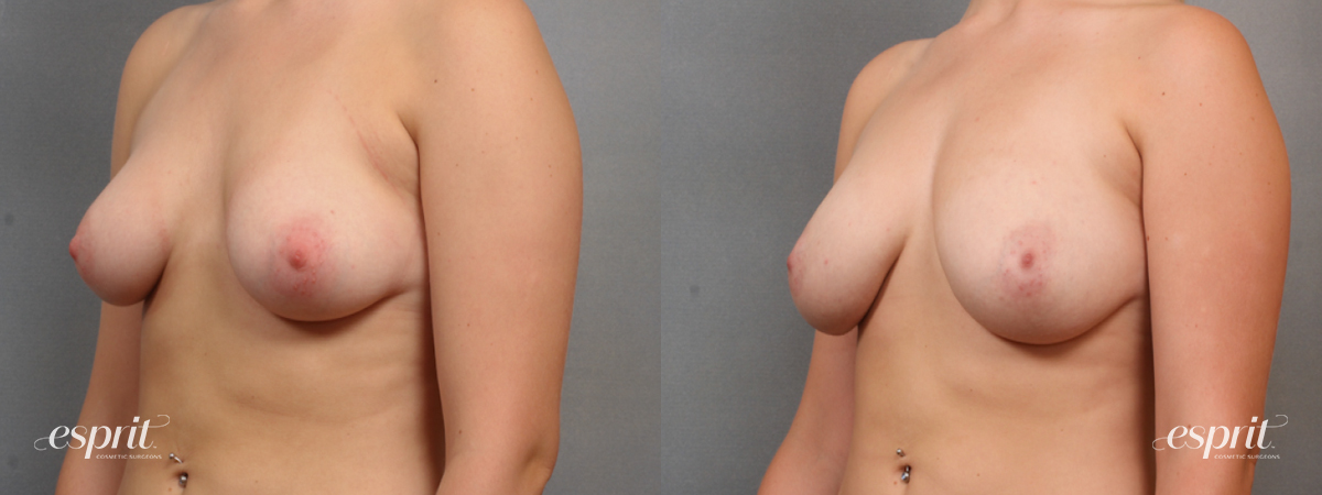 Case 1581 Before and After Left Oblique View