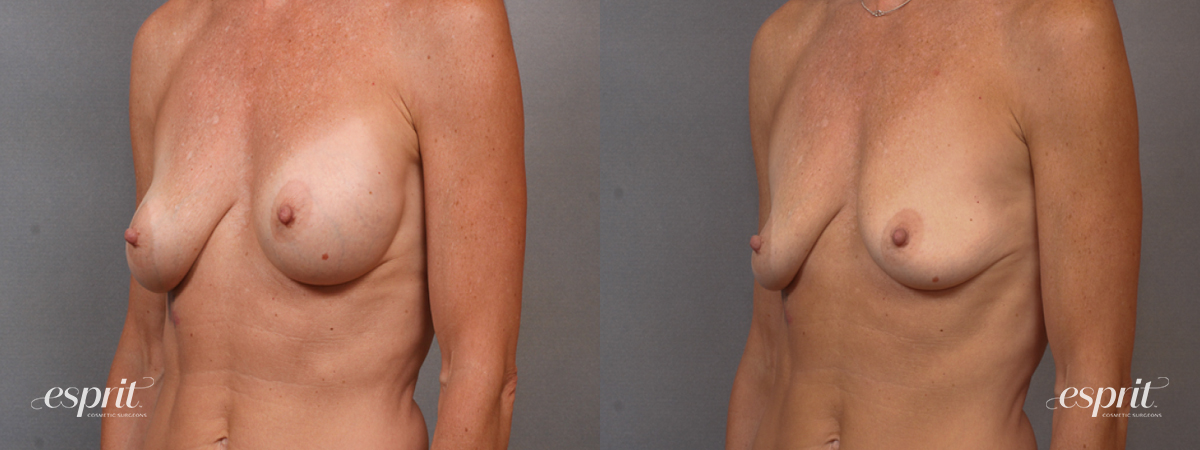 Case 1600 Before and After Left Oblique View
