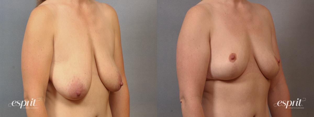 Case 1607 Before and After Right Oblique View