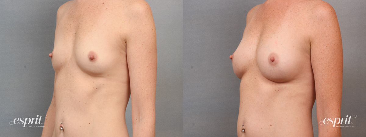 Case 1609 Before and After Left Oblique View
