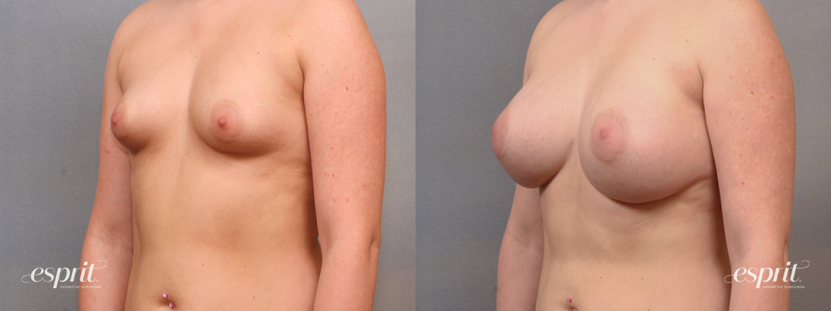 Case 1616 Before and After Left Oblique View