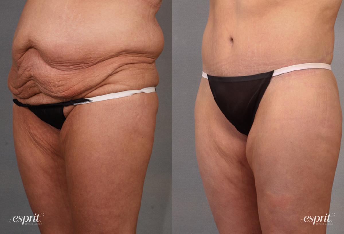 Case 1621 Before and After Left Oblique View