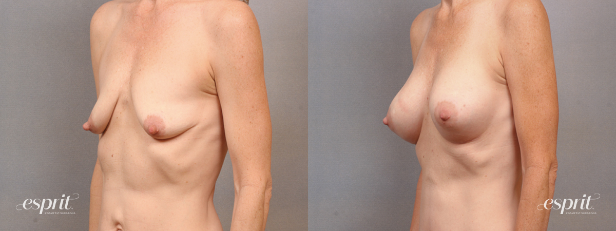 Case 1627 Before and After Left Oblique View Copy