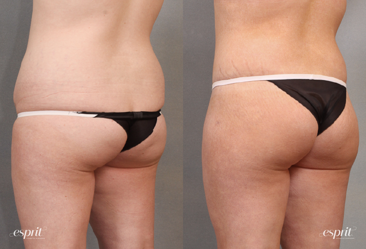 Case 1638 Before and After Back Oblique View