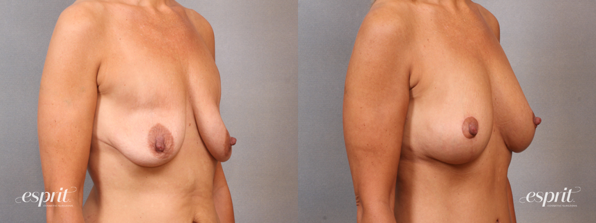Case 1641 Before and After Right Oblique View