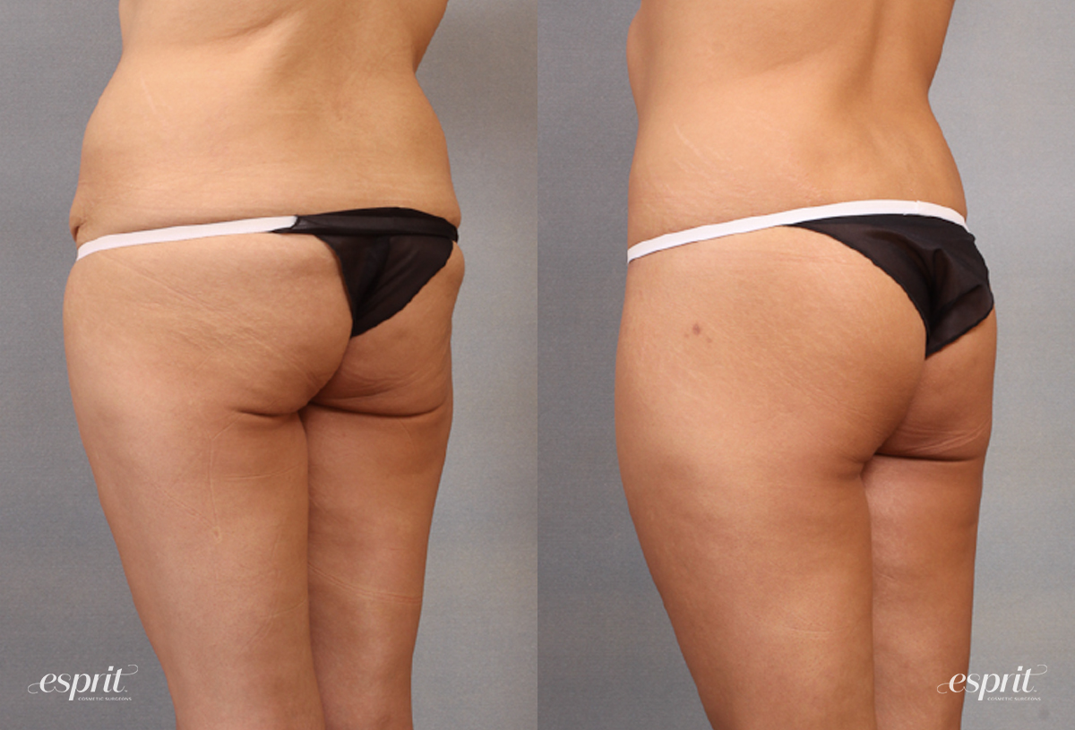 Case 1646 Before and After Back Oblique View