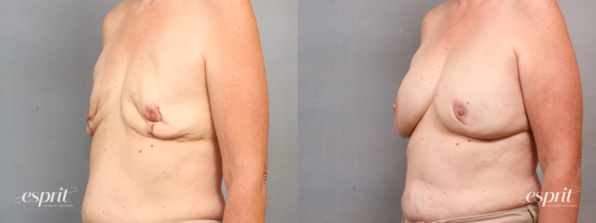 Case 1653 Before and After Left Oblique View