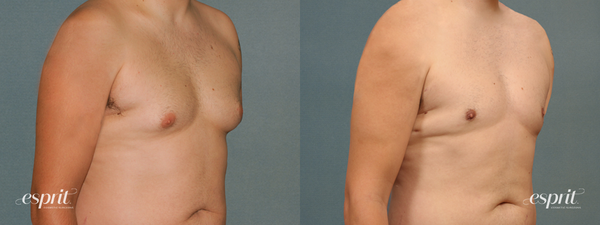 Case 1681 Before and After Right Oblique View