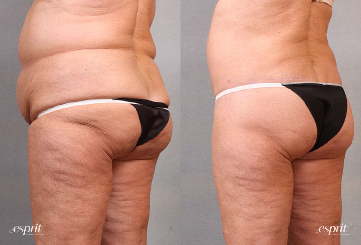 Case 1682 Before and After Back Oblique View