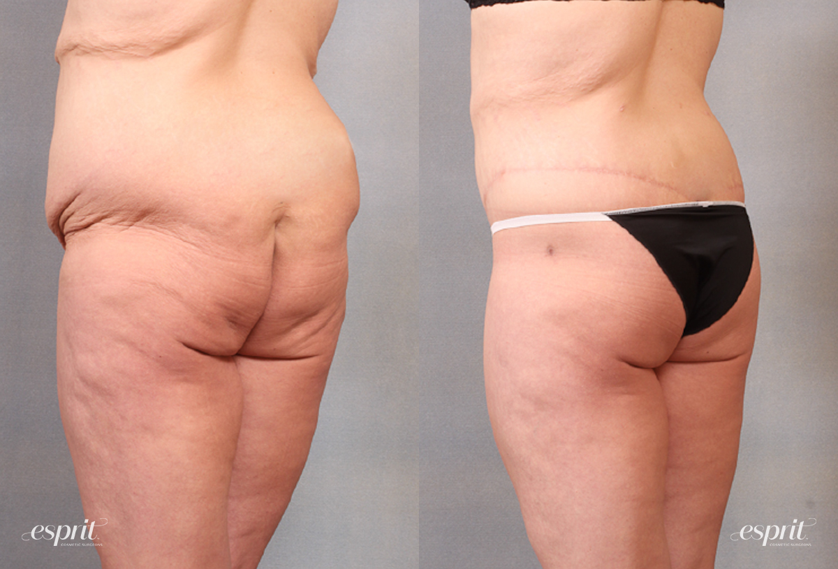 Case 1683 Before and After Back Oblique View