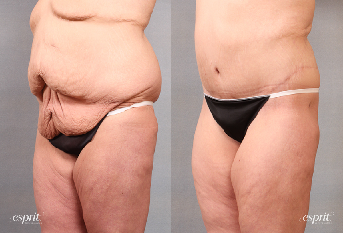 Case 1683 Before and After Left Oblique View