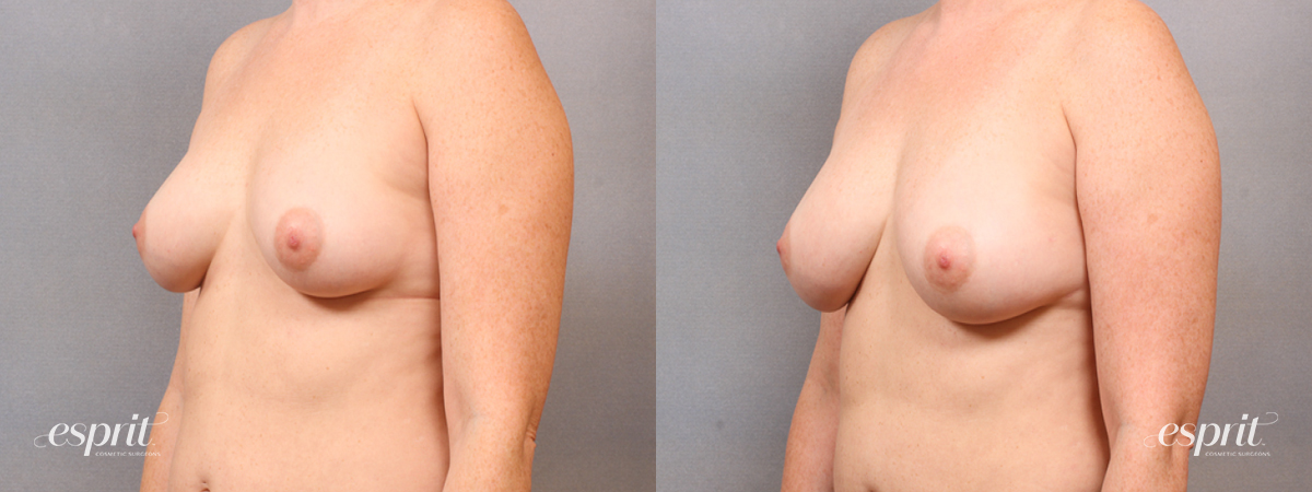 Case 1684 Before and After Left Oblique View
