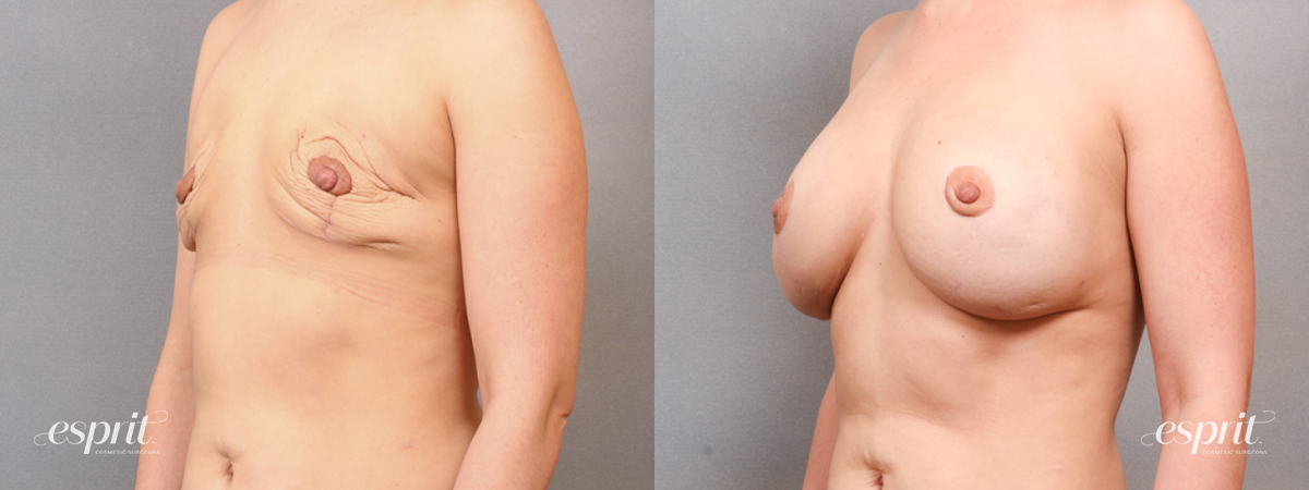 Case 1690 Before and After Left Oblique View
