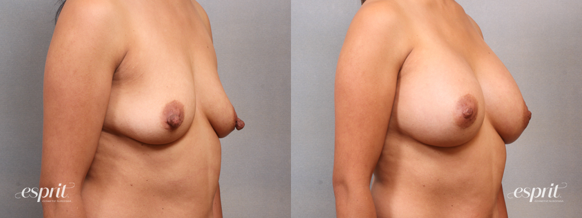 Case 1692 Before and After Right Oblique View