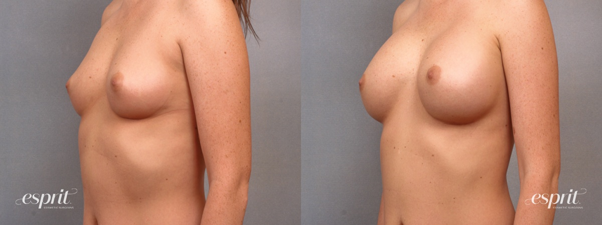 Case 1695 Before and After Left Oblique View