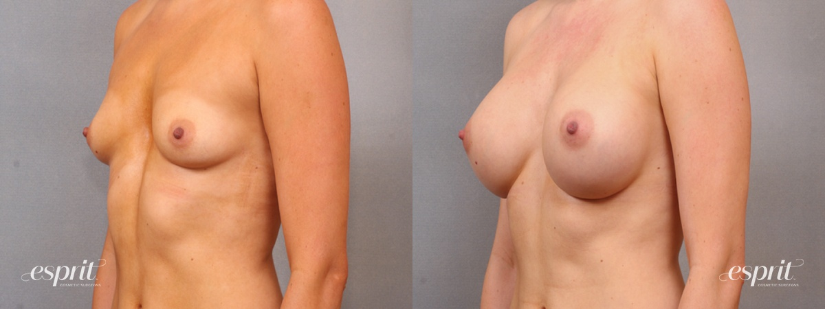 Case 1637 Before and After Left Oblique View