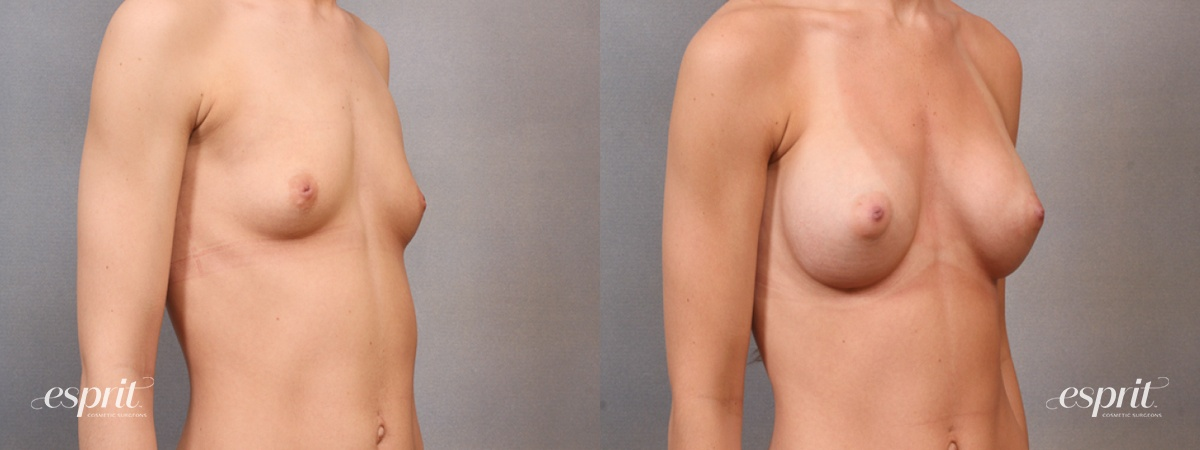 Case 1642 Before and After Right Oblique View