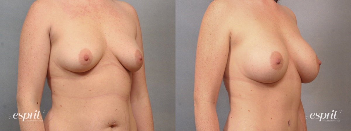 Case 1644 Before and After Right Oblique View