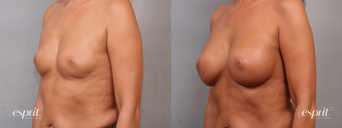 Case 1632 Before and After Left Oblique View