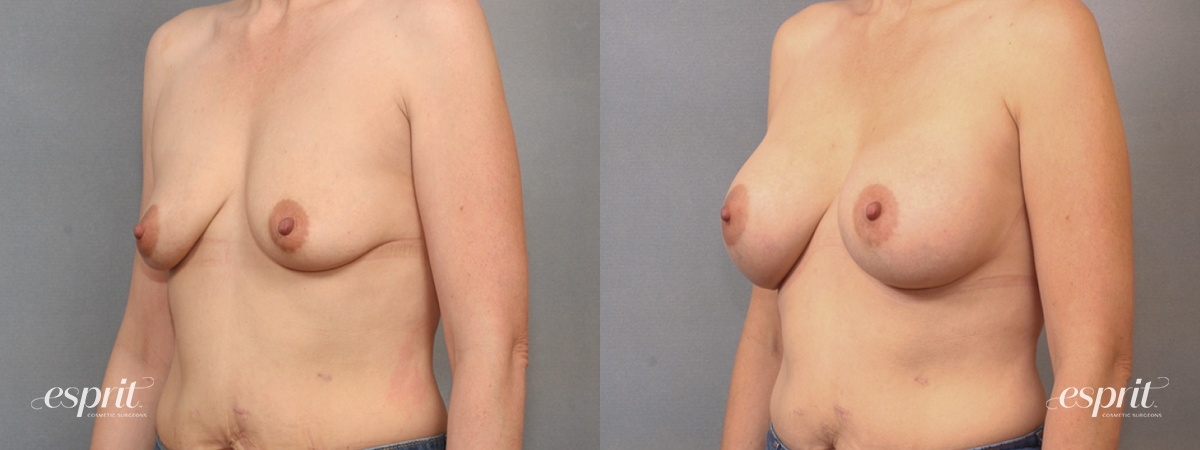 Case 1629 Before and After Left Oblique View