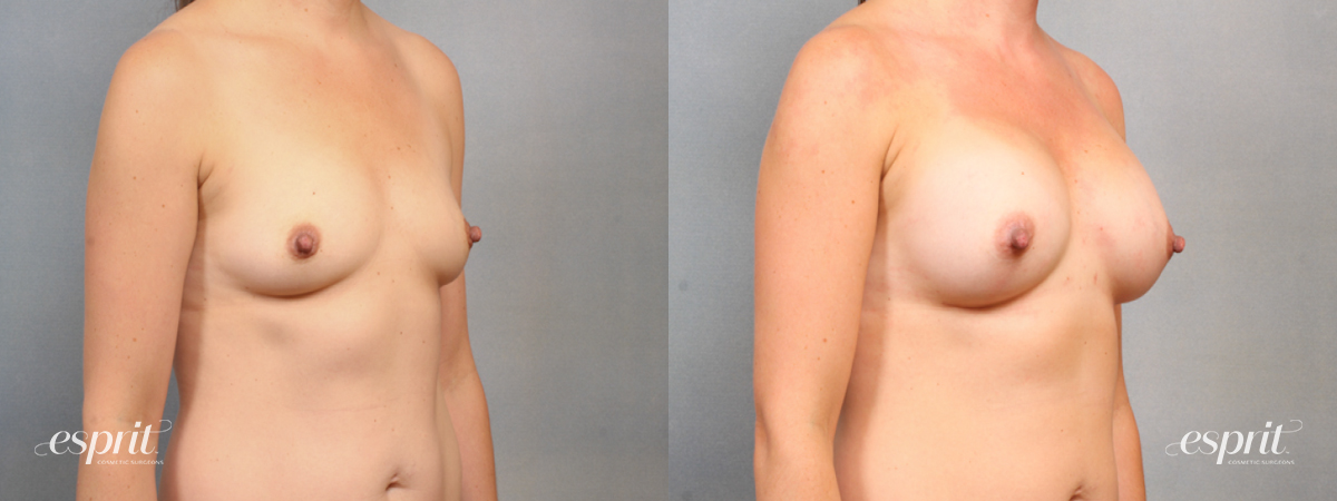 Case 1526 Before and After Right Oblique View