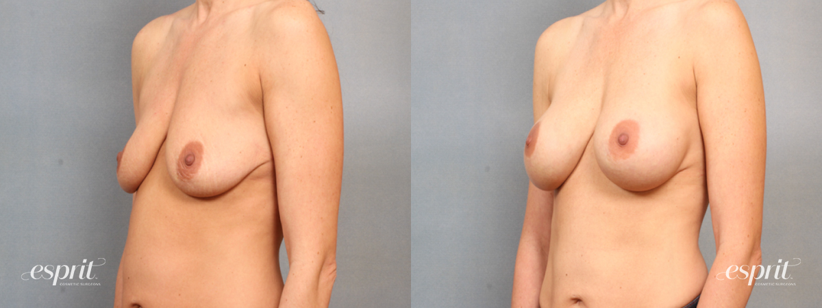 Case 1529 Before and After Left Oblique View
