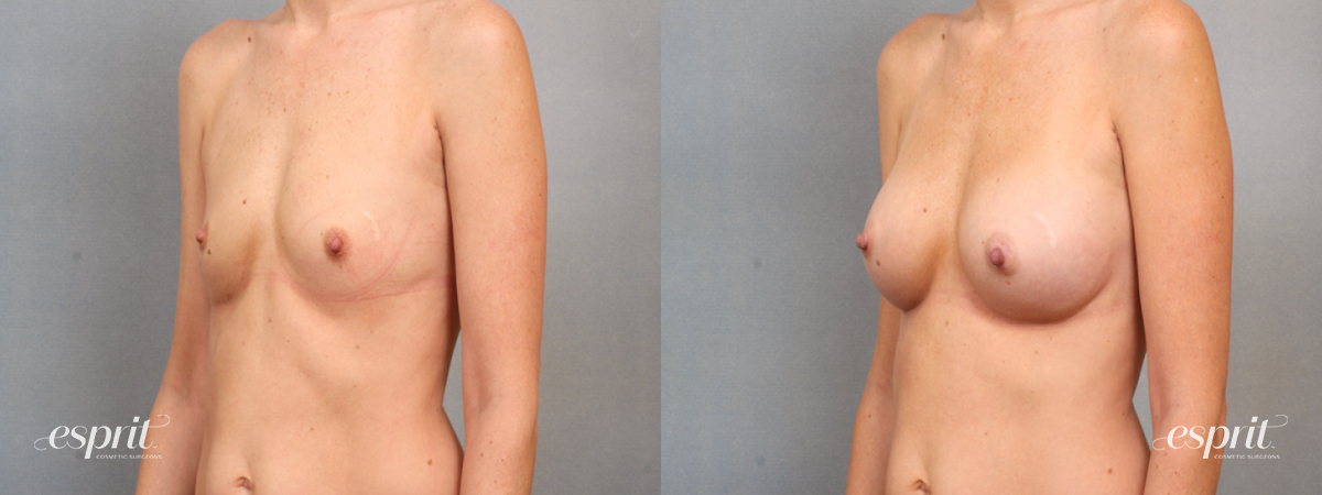 Case 1531 Before and After Left Oblique View