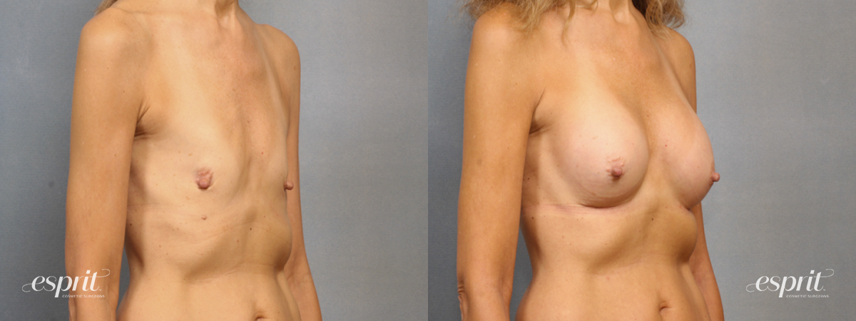 Case 1533 Before and After Right Oblique View