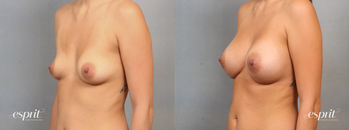Case 1564 Before and After Left Oblique View