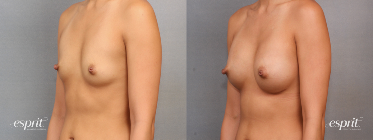 Case 1567 Before and After Left Oblique View