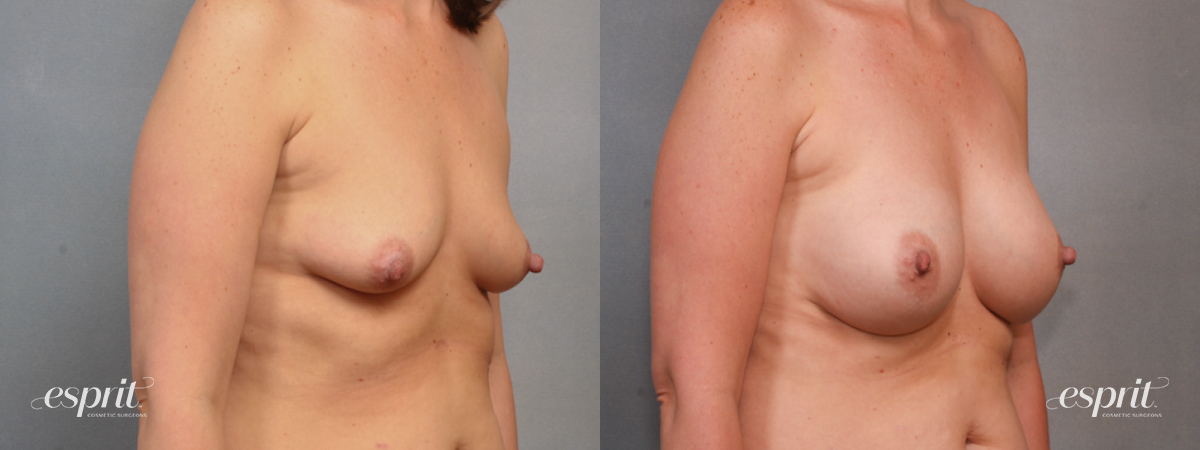 Case 1568 Before and After Right Oblique View