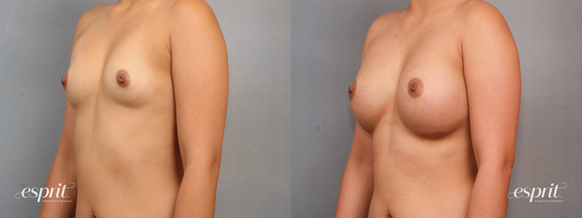 Case 1569 Before and After Left Oblique View