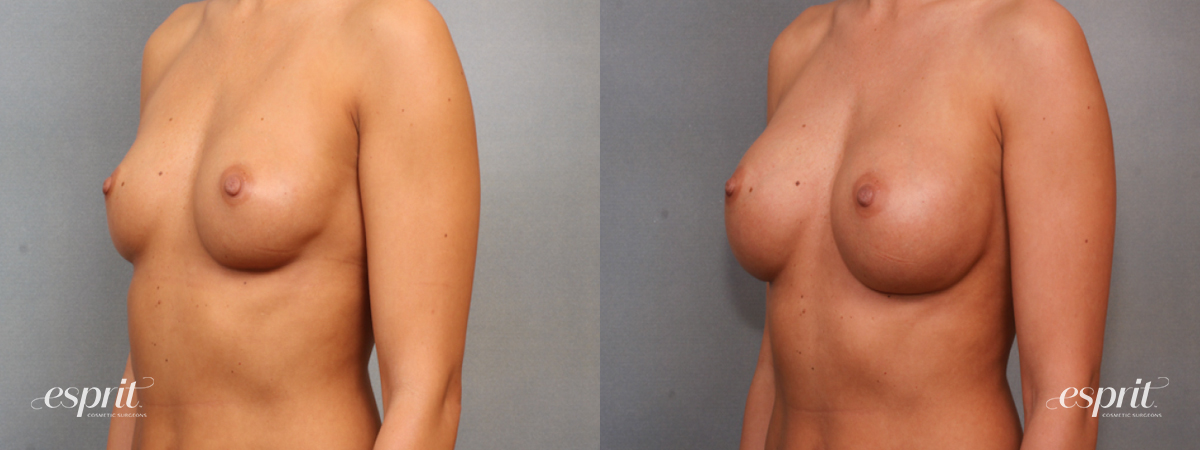 Case 1575 Before and After Left Oblique View