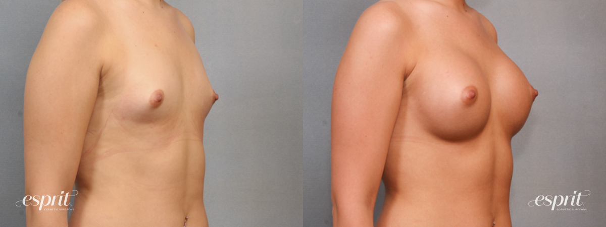 Case 1576 Before and After Right Oblique View
