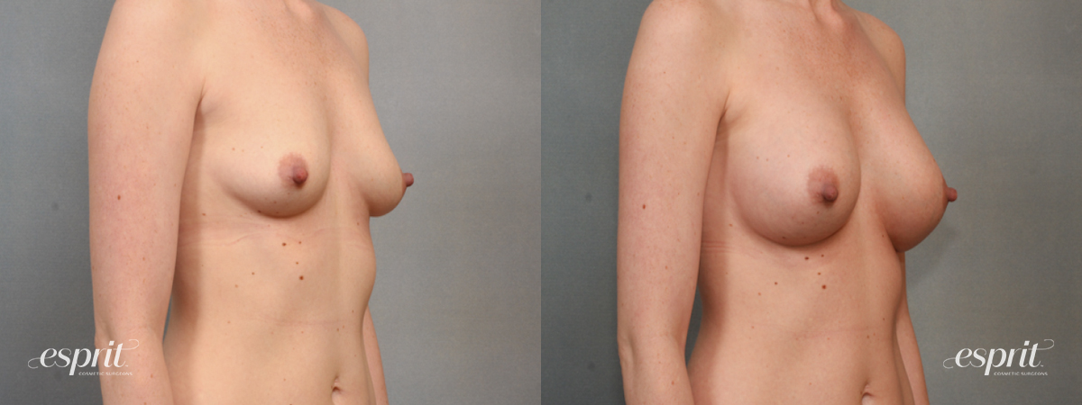 Case 1578 Before and After Right Oblique View