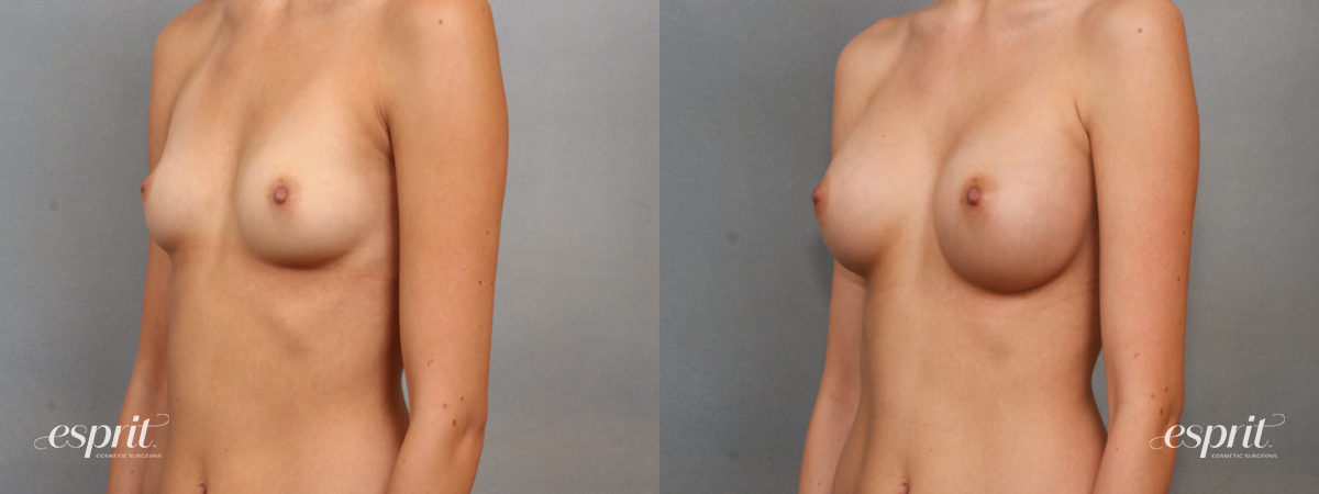Case 1579 Before and After Left Oblique View