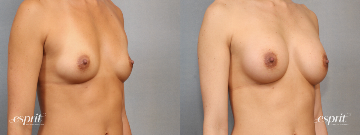 Case 1580 Before and After Right Oblique View