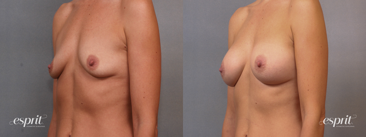 Case 1595 Before and After Left Oblique View