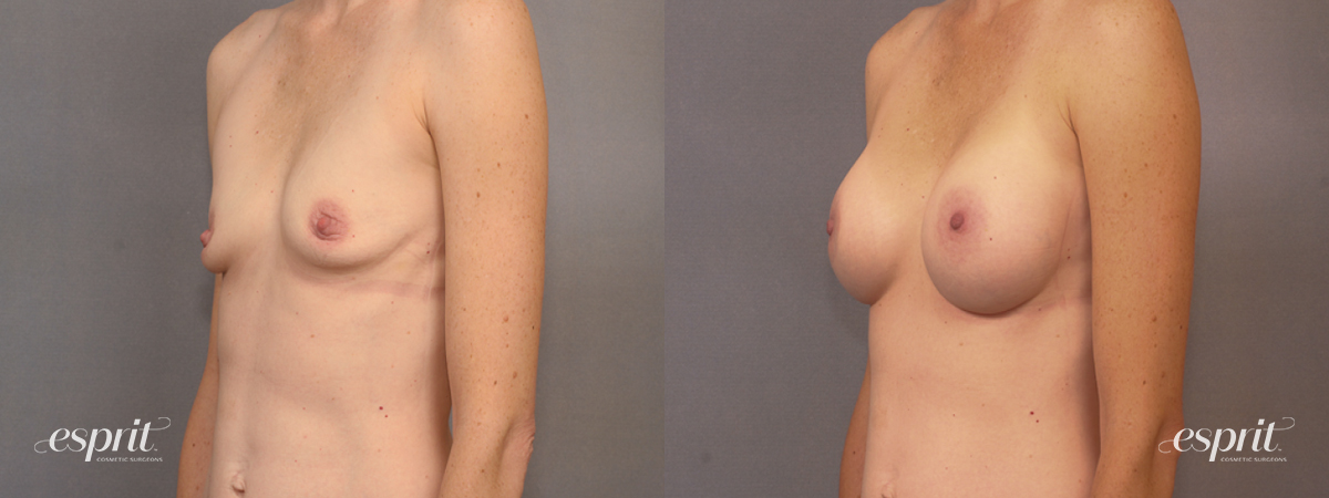 Case 1596 Before and After Left Oblique View