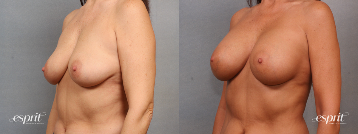 Case 1597 Before and After Left Oblique View