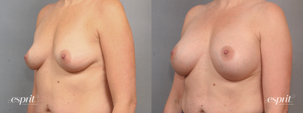 Case 1603 Before and After Left Oblique View