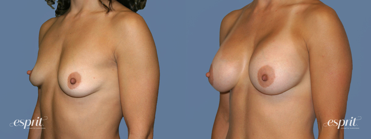 Case 1250 Before and After Left Oblique View
