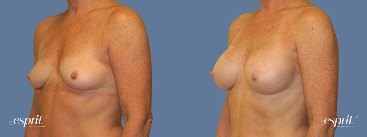 Case 1253 Before and After Left Oblique View
