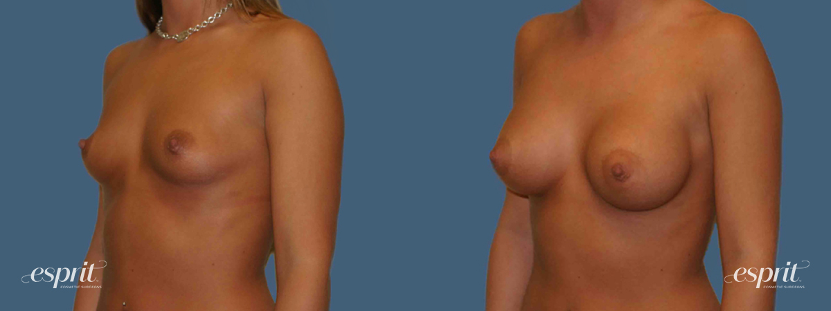 Case 1254 Before and After Left Oblique View