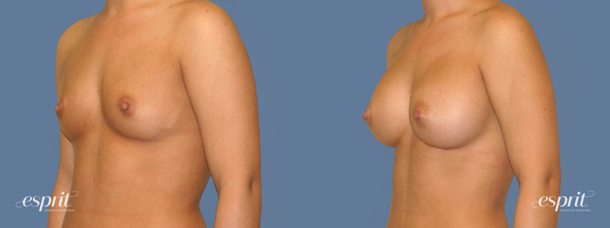 Case 1255 Before and After Left Oblique View