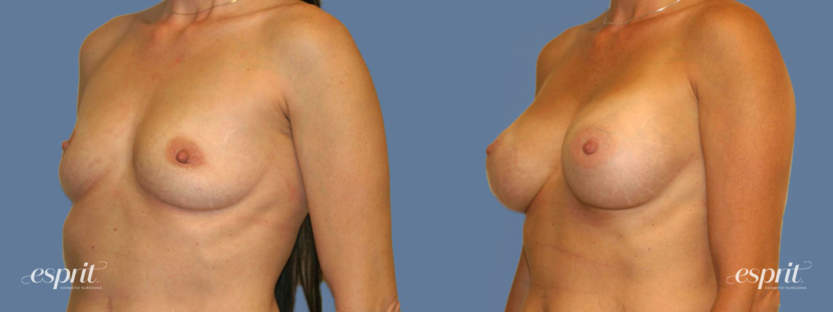 Case 1259 Before and After Left Oblique View