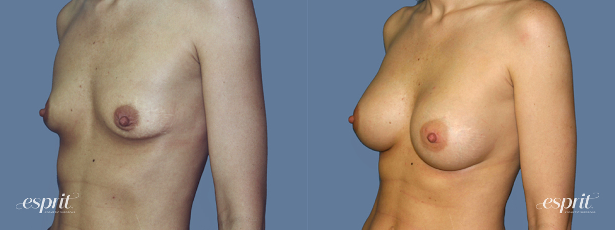 Case 1260 Before and After Left Oblique View