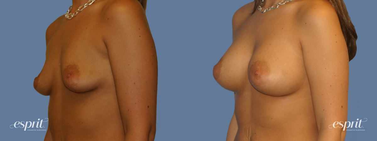 Case 1264 Before and After Left Oblique View