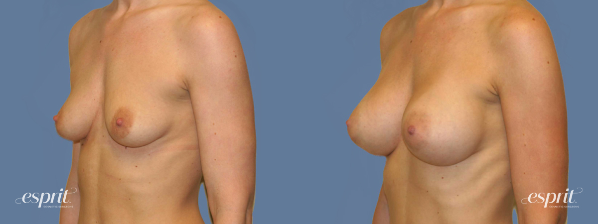 Case 1265 Before and After Left Oblique View